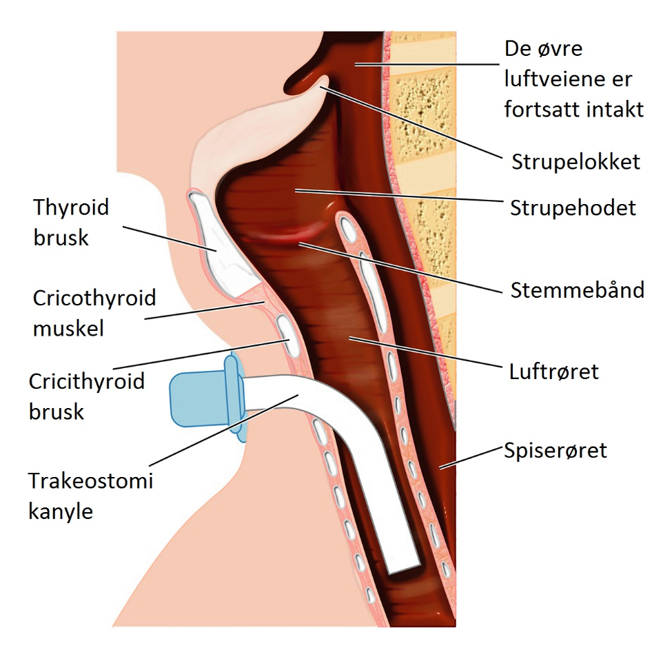 Illustration of how tracheostomy works